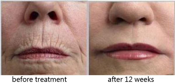 Marvelous The Combination Of These From The Collagen Red Light Therapy Gives The Skin  A Youthful Look And Really Will Make You Look Up To 10 Years Younger! Good Ideas