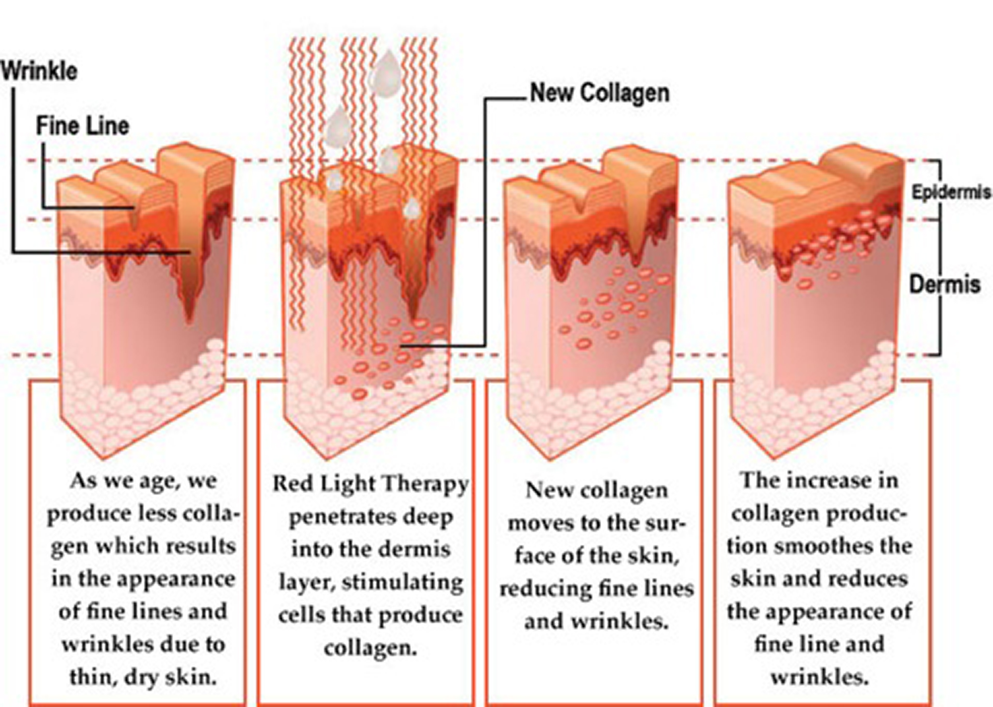 handy shows pin our red uses heliotherapyreviews light lighting and visit anti of aging diet all inforgraphic com the therapy lights